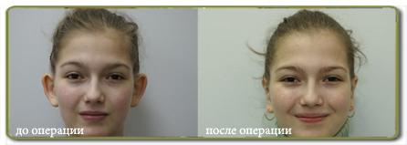 Пластическая хирургия москва и цены отзывы центр косметологии и пластической хирургии самара