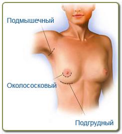 Масаж на увеличение груди