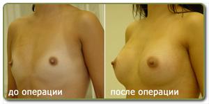 Как делают пластику на грудь
