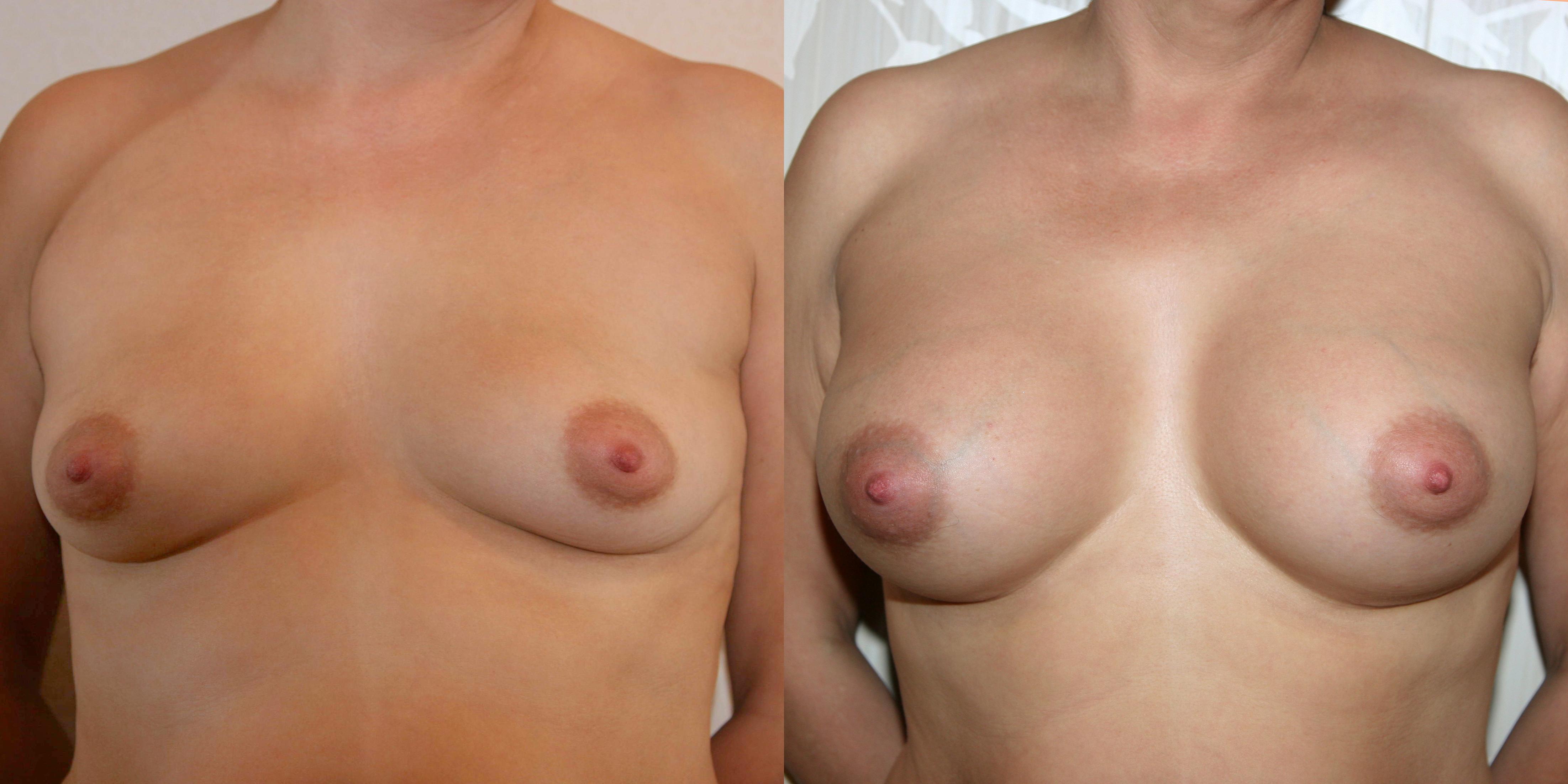 Девушка с маленьким размером груди